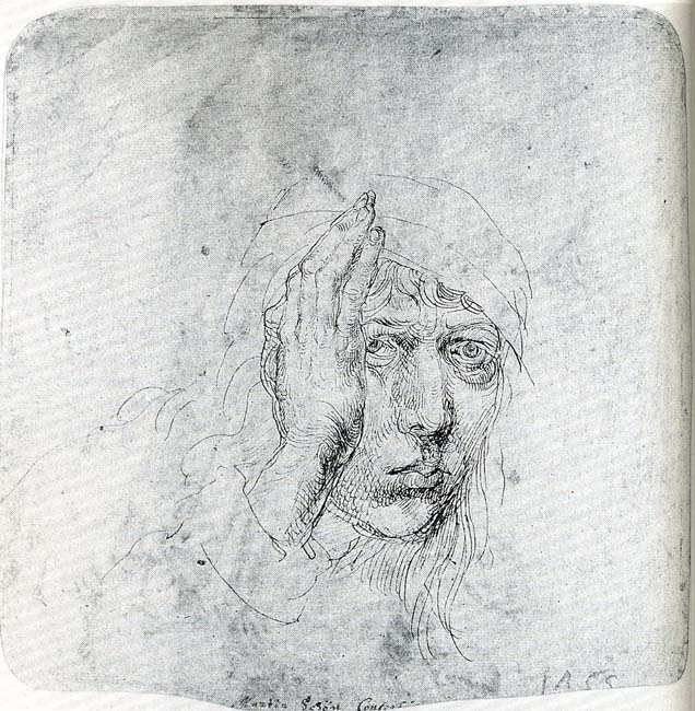 Albrecht Duerer strabismus drawing, does it seem familiar?